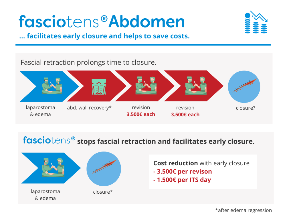 How to save cost with fasciotens abdomen